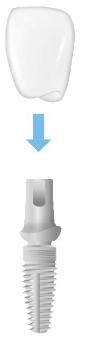 Die individuelle Krone wird bei zweiteiligen Implantaten auf dem sogenannten Abutment befestigt.
