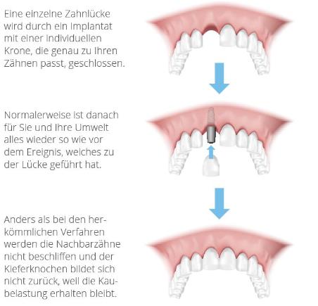 Schematische Darstellung des Ersatzes eines Frontzahnes mit einem einteiligen Implantat