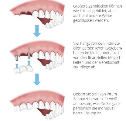 Schematische Darstellung eines festsitzenden Zahnersatzes für drei fehlende Zähne mit 2 einteiligen Implantaten