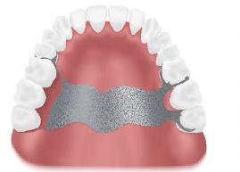 Schematische Darstellung einer herkömmlichen, herausnehmbaren Lösung des Ersatzes von 3 feglenden Zähnen im Oberkiefer