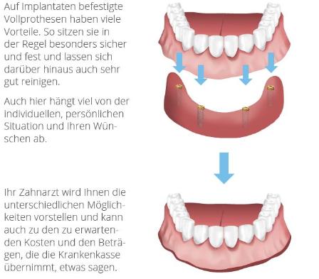 Schematische Darstellung eines festsitzenden Zahnersatzes im Unterkiefer auf 4 Implantaten